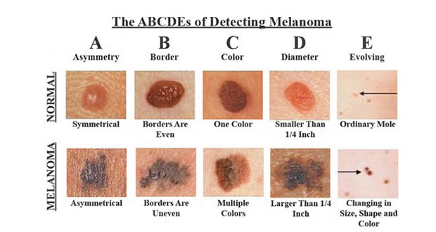 Comme prévenir lapparition de la pigmentation sur la personne